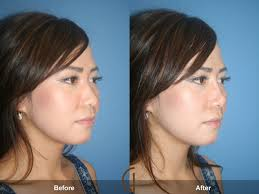 non-surgical nose job implementation