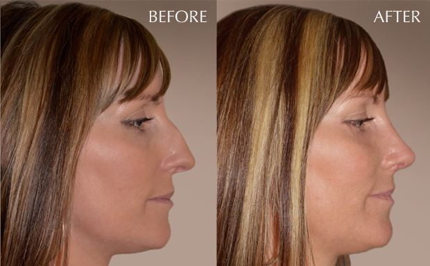 non-surgical nose job to save your nose from surgery