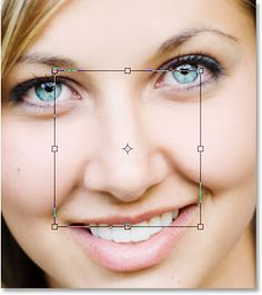 nose job costs with computer imaging