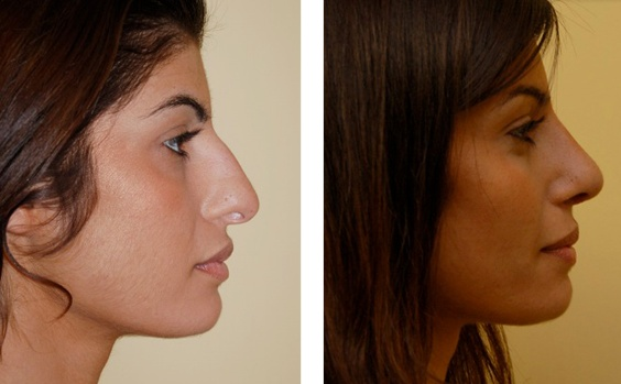nose job with best result