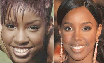 African American Rhinoplasty Before and After