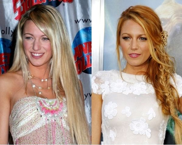 Cosmetic Surgery in celebrity