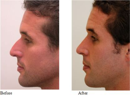 Male Rhinoplasty - Before and After