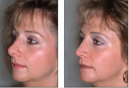 Revision Rhinoplasty - Before and After