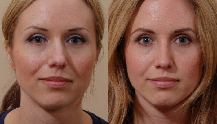 Rhinoplasty nasal nose surgery