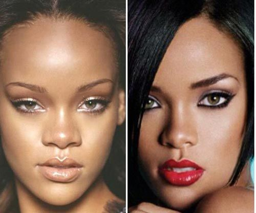 Rihanna rhinoplasty before and after