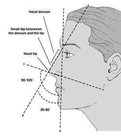 nasal surgery with rhionoplasty