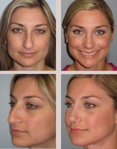 nose surgery with surgeons