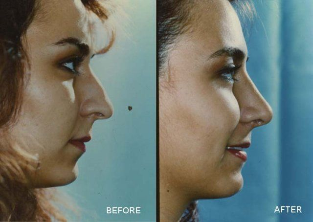 reshaping nose with nasal surgery