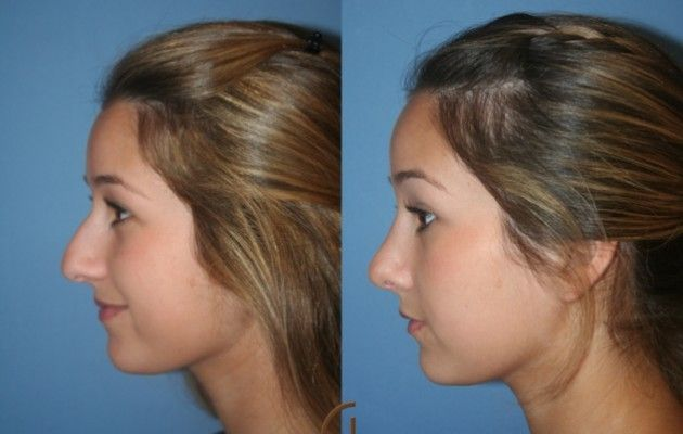 Before & After Nose Job Surgery