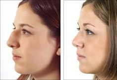 Rhinoplasty for People have Breathing Problem