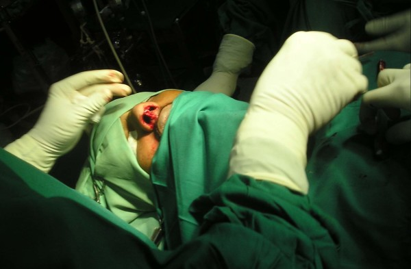 Surgery of Rhinoplasty with Anesthesia