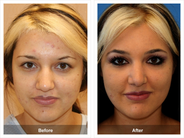 Before & After Nose Job
