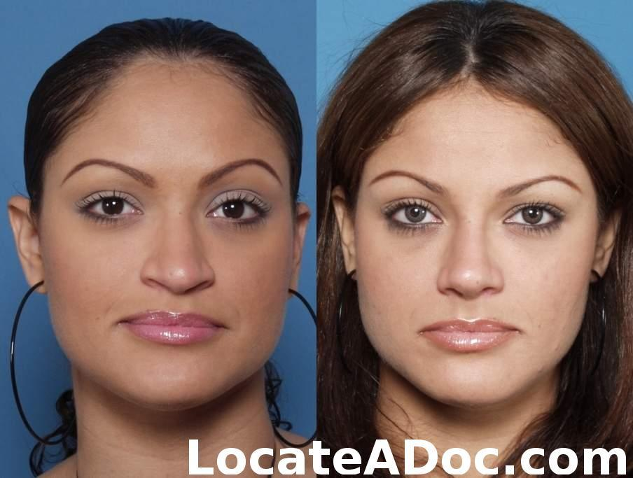 Before u0026amp; After Rhinoplasty 10 | Newport Beach Nose Job