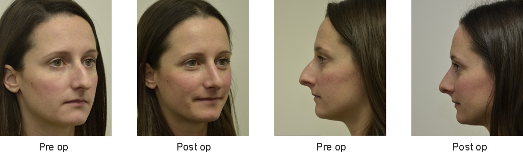 Before and After Rhinoplasty Women