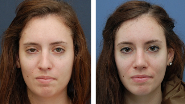 Before and After Rhinoplasty