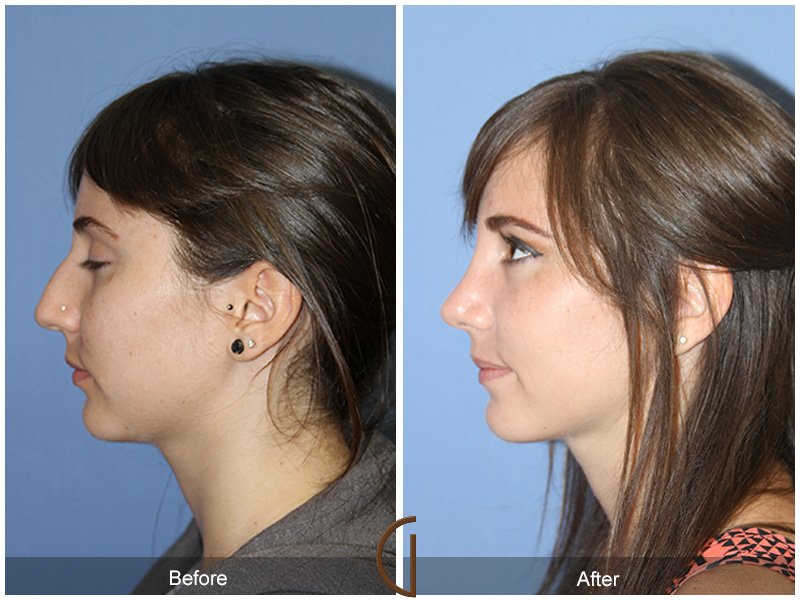 Before and After Teenage Rhinoplasty