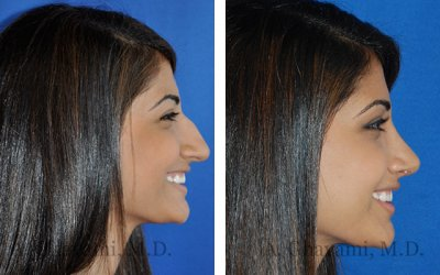 nose jobs before and after profile