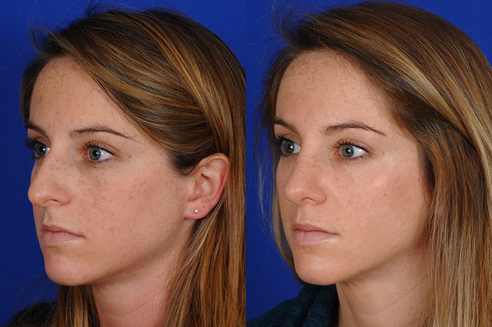 Nose Job Patient Before and After