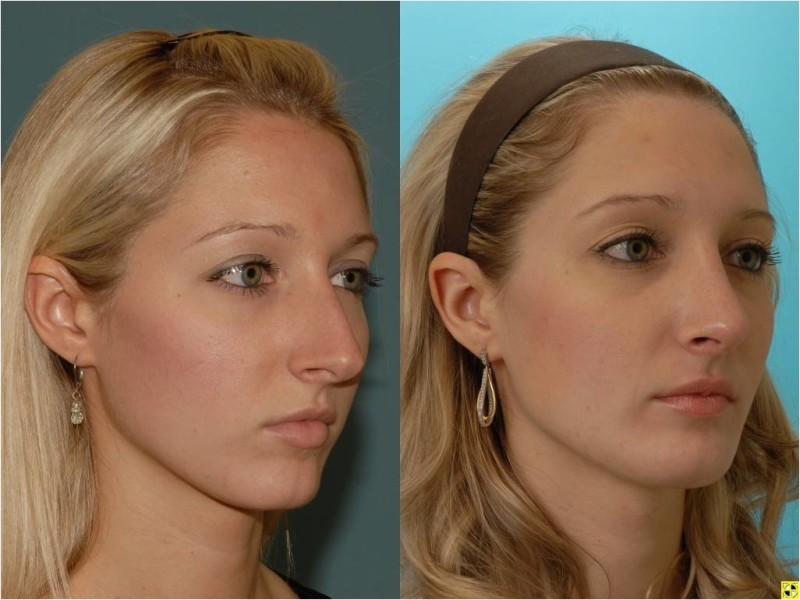 Nose Job - Rhinoplasty