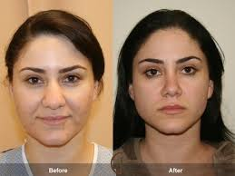 Open Vs Closed Rhinoplasty Before and After