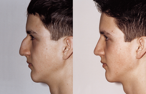 Rhinoplasty After Results