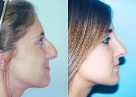 Rhinoplasty - Nose Reshaping