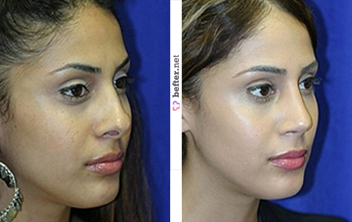 Rhinoplasty Women Before and After