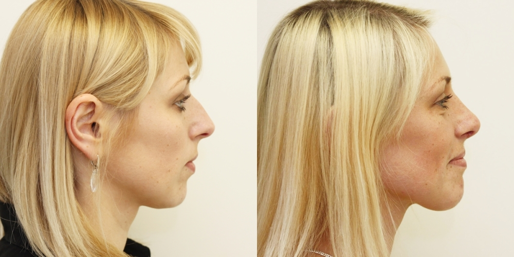 Rhinoplasty before and after picture