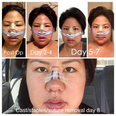 Nose Job Recovery  Best Rhinoplasty. Longs Peak Beauty Academy Web Developer Tasks. Rochester Blue Cross Blue Shield. Coworking Spaces San Francisco. Economy Plumbing Santa Barbara. Setting Up An Llc In Michigan. Nc State Graduate Programs T Mobile Lifeline. Masters In Technology Education. Real Estate Loans Rates Cheap Asp Web Hosting